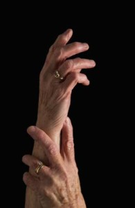 Arthritic hands intertwined on a black background